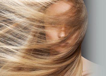 Лечение и профилактика выпадения волос