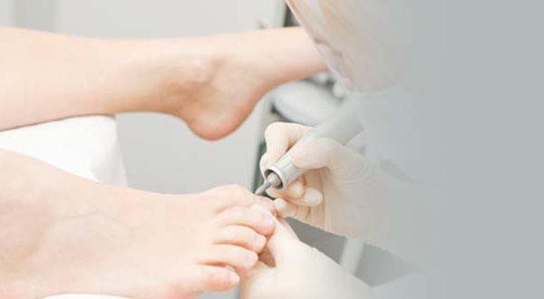 Коррекция вросшего ногтя (отдельная процедура)